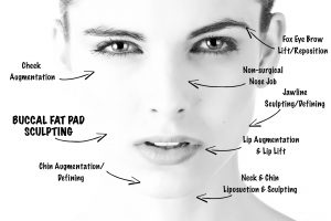 buccal fat removal chicago illinois