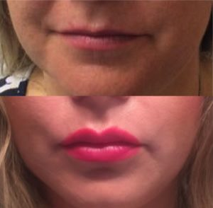Buccal Fat Removal - Before After Example - Dr Caughlin