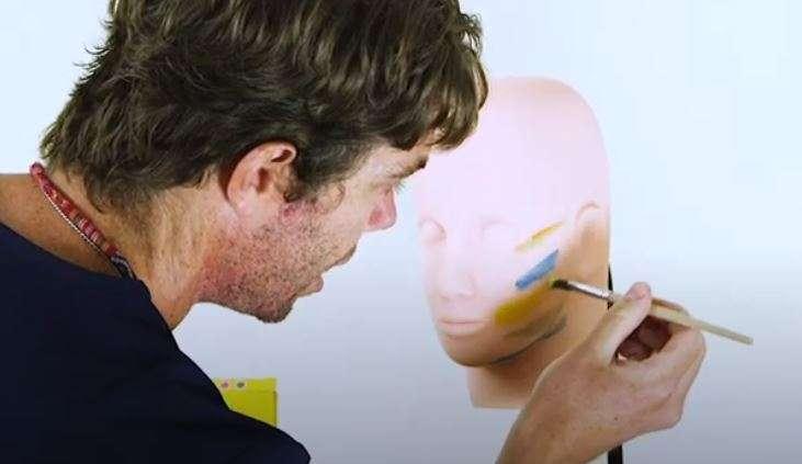 Buccal Fat Cheek Sculpting Face Contouring