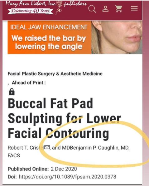buccal fat pad removal for lower facial contouring