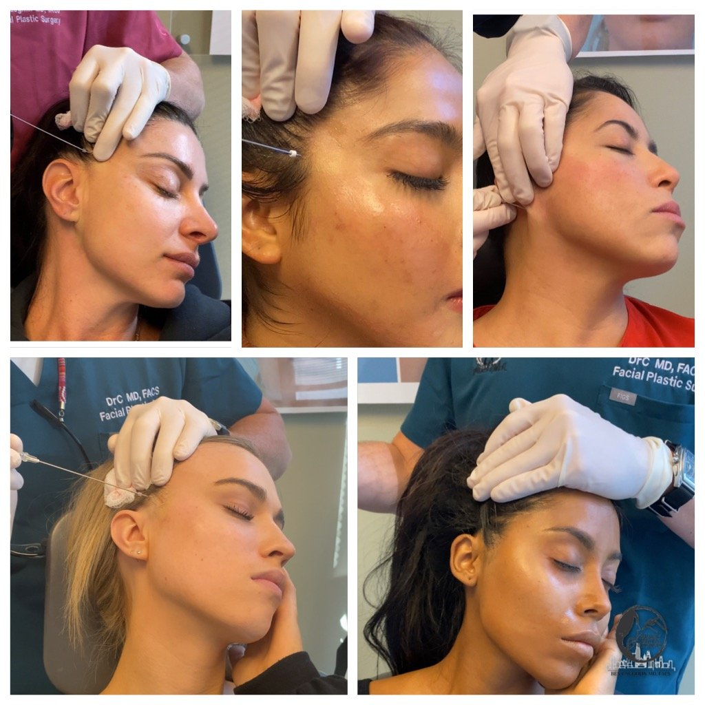 Instasnatched - threads fillers and contouring of the face for the perfect selfie