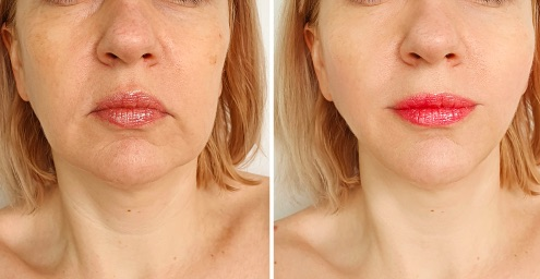 Chicago Facial Thread Lift Treatments - Before & After