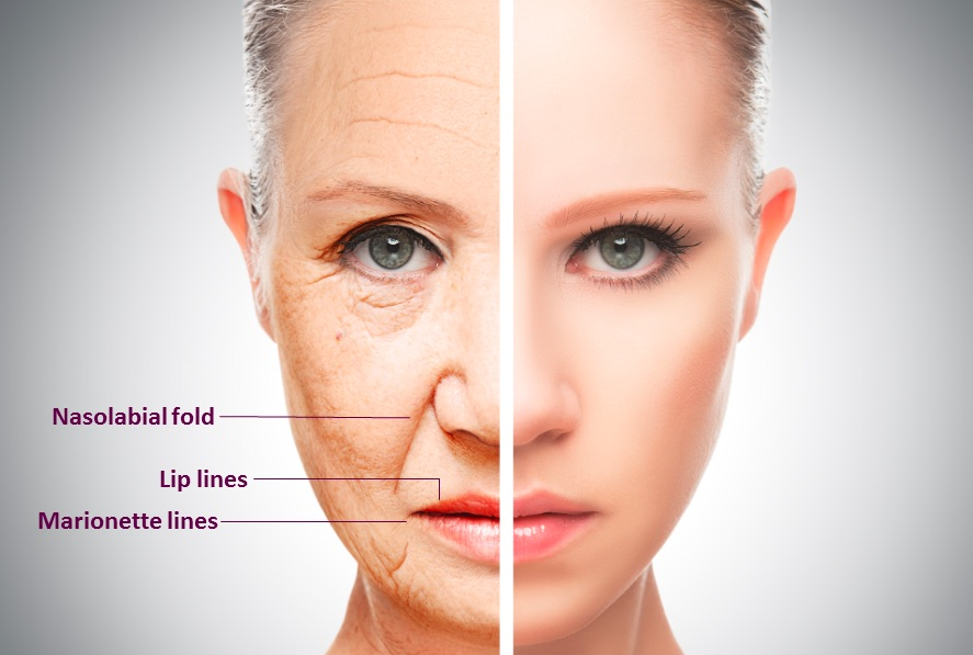 Injectable Dermal Filler Treatments in Chicago