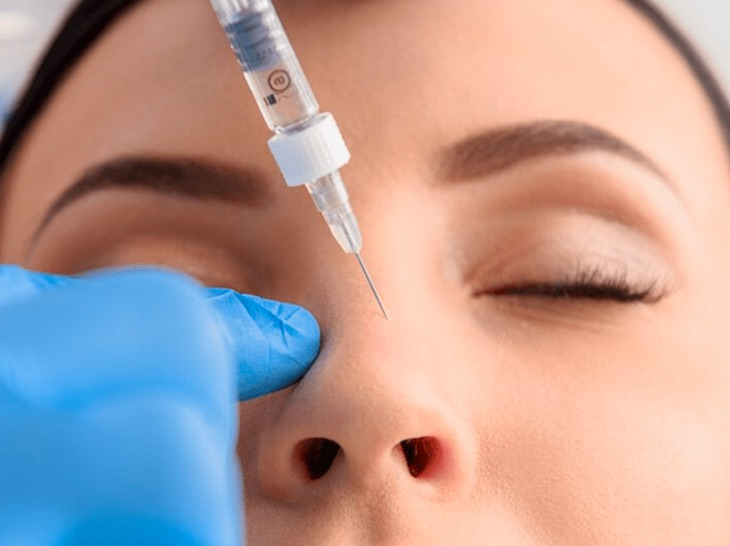 Injectable Fillers for Nose Jobs in Chicago