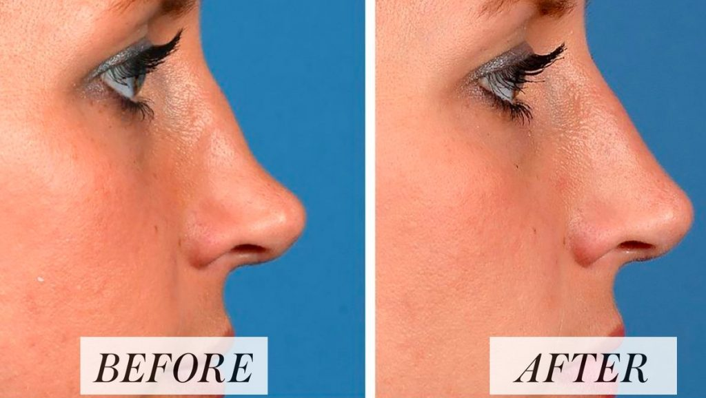 Chicago Nose Job Injectable Fillers Before & After