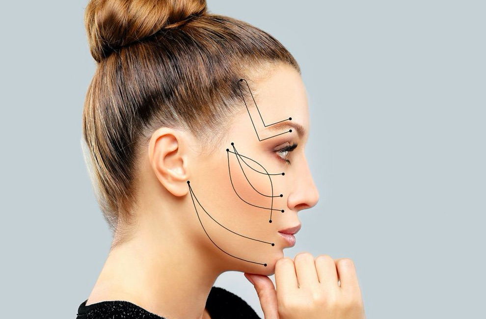 Many Faces of Chicago - Facial Thread Lift Treatment Procedures