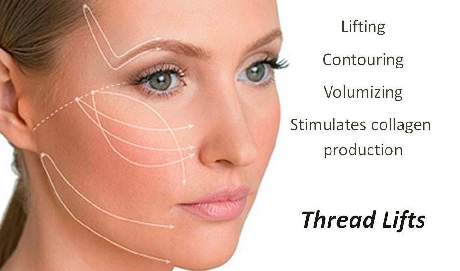 Many Faces of Chicago Thread Lift - Facial Contouring Facelifts